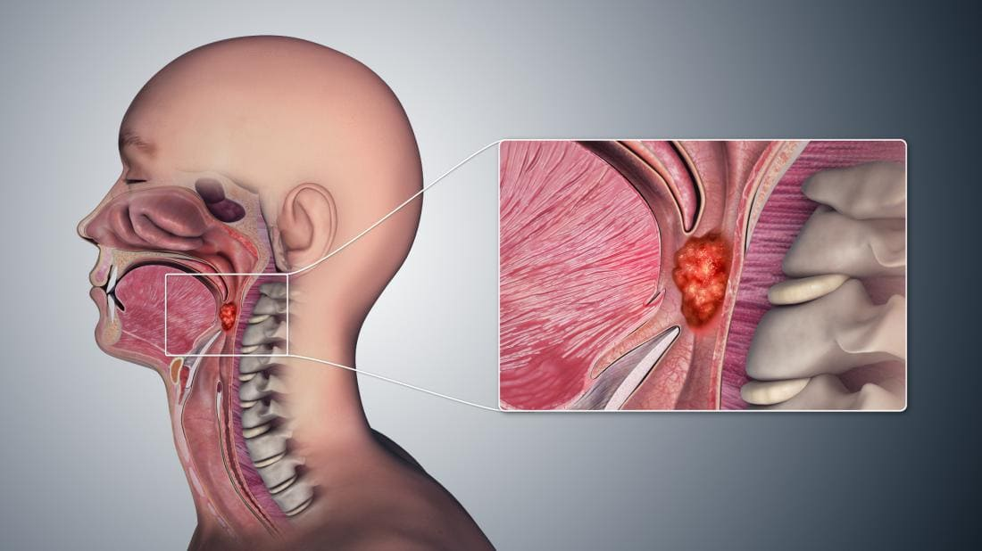 10 Signs of Throat Cancer to Never Ignore