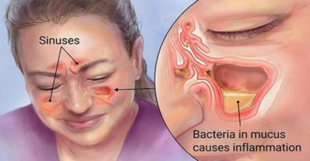 The Simple Method For Killing A Sinus Infection In Minutes