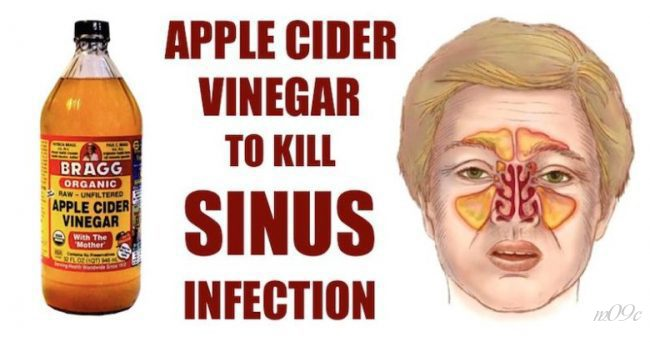 apple cider vinegar - sinus infection