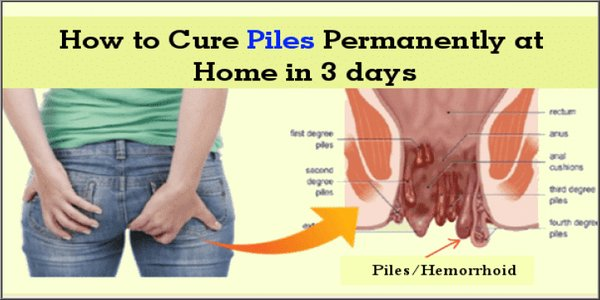 cure piles